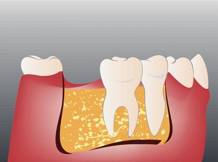 Изначальная ситуация, отсутствует один зуб